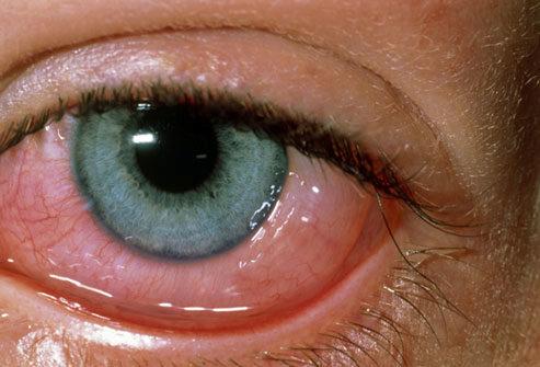 аллергия глаз на кошек